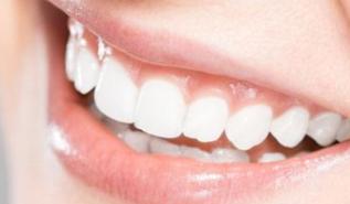做烤瓷牙牙龈发炎怎么办 北京美年口腔整形医院烤瓷牙好吗