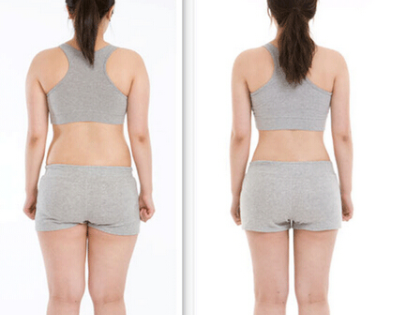 怎样减肥比较安全 抚州江医生整形医院腰腹部吸脂价格