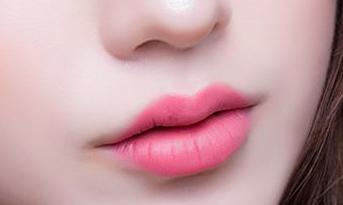 纹唇后如何护理 六盘水吴氏嘉美美容整形医院好吗
