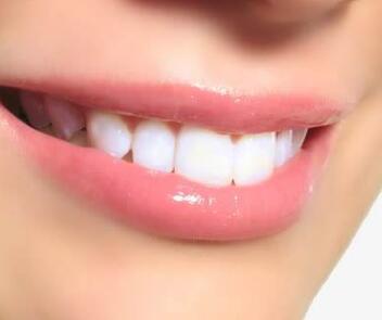 上海尤旦口腔整形医院正畸要多少钱 牙齿隐形矫正价格