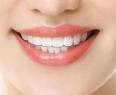 全瓷牙好吗 上海优德口腔医院全瓷牙优势是什么