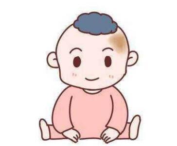 胎记是怎么形成的 湖北省中医院整形科激光去胎记很贵吗