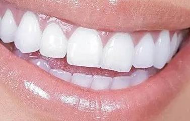 重庆天仙医疗整形医院好吗 种植牙有什么优缺点