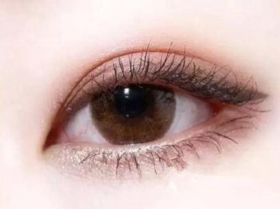 云岩应超小李飞刀整形激光治疗眼袋怎么样 给你明媚双眸