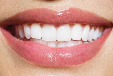 武汉达美口腔整形医院好吗 牙齿种植适合哪些人做