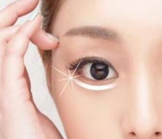 长春铭韩做眼袋手术多少钱 吸脂去眼袋优势是什么