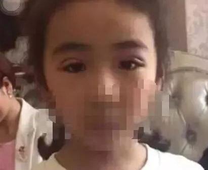 7岁未成年女孩能整容吗 你怎么看