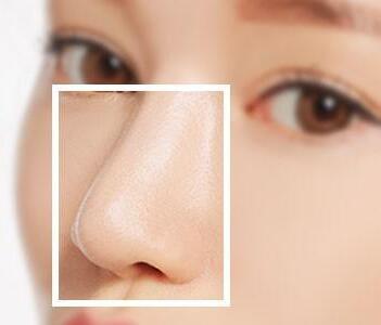 南京芬迪做鼻部手术多少钱 鼻小柱延长价格贵吗