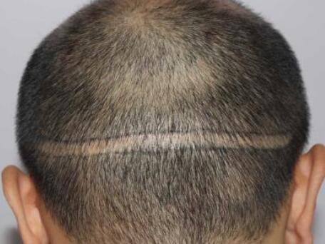 广州科发源植发整形医院疤痕植发会不会有疼痛感