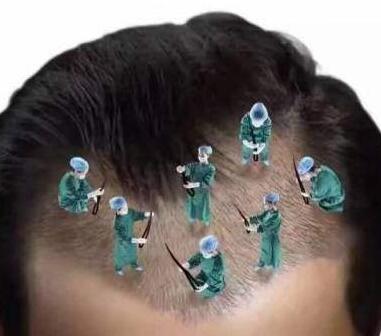 头上疤痕植发哪家好 西宁华美整形医院植发怎么样