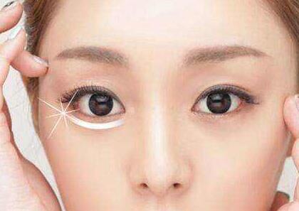 许昌人民医院整形外科激光除皱怎样 鱼尾纹的克星