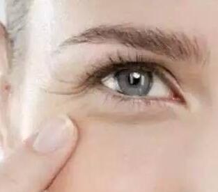 怎样去除眼部细纹 惠州鹏爱整形医院激光除皱能维持多久