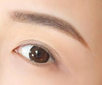 眉毛稀少怎么办 合肥华美做眉毛种植效果自然吗