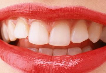 成都武侯圣贝口腔整形医院怎么样 做了烤瓷牙后还能<font color=red>洗牙</font>吗