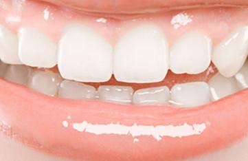 长沙医疗美容整形医院种植牙手术效果维持多久