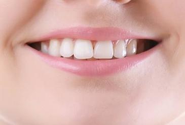 成都玉颜医疗整形医院怎么样 烤瓷牙术后要如何保护