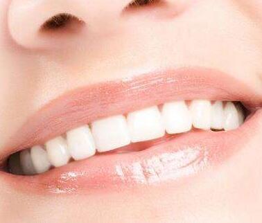 莆田雅美佳口腔整形医院美白牙齿一次多少钱