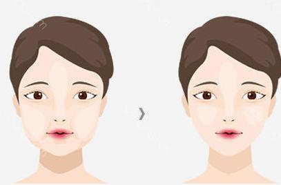 深圳香蜜丽格整形医院祛除颊脂垫多少钱 适合什么样的人
