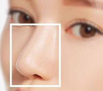 整形隆鼻医院哪家技术好 <font color=red>假体隆鼻</font>优势是什么