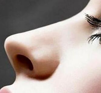 做鼻子哪里好 自贡西婵整形医院鼻部再造效果自然吗