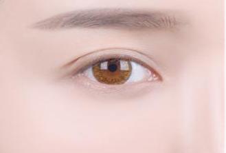 抚州梦婷医疗美容整形医院怎么样 激光去眼袋的优点