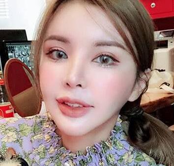 泰国女孩Jenny Dolita整容40多次 变大美女成整形医院顾问