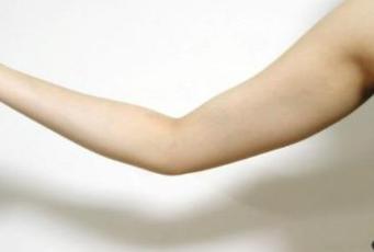 手臂吸脂贵吗 厦门仁安医院美容整形科吸脂价格表
