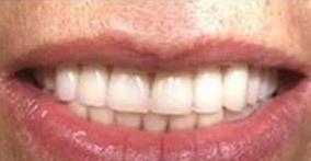 苏州澳美整形医院<font color=red>牙齿矫正</font>怎么样 让牙齿更加整齐
