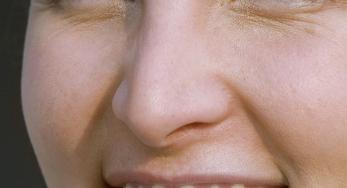安丘人民医院整形科好吗 <font color=red>歪鼻矫正</font>术后会看到疤痕吗