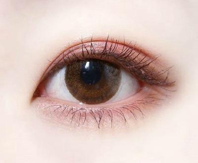 孝感中心医院整形科<font color=red>切开双眼皮</font>手术 拥有灵动传神双眼