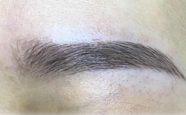 种眉毛一般多少钱 合肥碧莲盛植发医院<font color=red>种植眉毛</font>价格