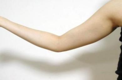唐山邓柏林整形医院手臂吸脂优势有哪些  术后怎么护理