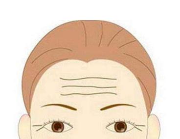 苏州圣爱整形医院激光去除抬头纹的优势  轻松去除抬头纹