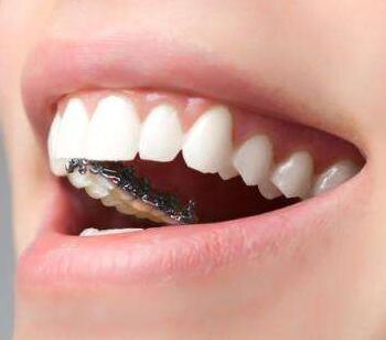 大连沙医生口腔整形医院在哪 钴铬合金烤瓷牙效果好吗