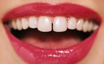烤瓷牙适用于哪些牙齿问题 呼和浩特华口腔医院美容科地址