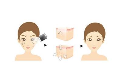 廊坊华康整形医院光子嫩肤的优势有哪些  有没有副作用呢