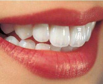 成都武侯圣贝口腔医院做牙齿冷光美白多少钱