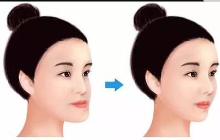 上海松丰牙科整形医院地包天矫正优势  什么矫正比较好