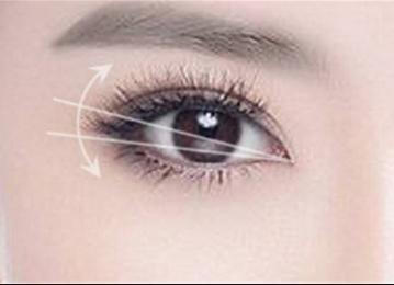 宜春伊美整形医院<font color=red>切开双眼皮</font>手术的优势  多久能恢复