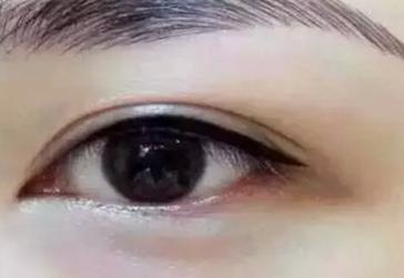 做双眼皮的几种方法 大同清木医疗整形美容医院地址