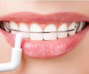 杭州美奥口腔整形医院好吗 小孩矫正牙齿多少钱