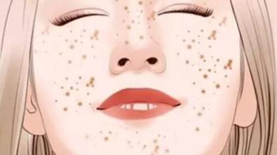 美容祛斑的好方法 德州天宏整形医院彩光祛斑多少钱
