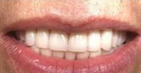 <font color=red>牙齿矫正</font>要做哪些检查 杭州美奥口腔整形医院<font color=red>牙齿矫正</font>价格