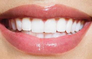 种植牙齿很稳固吗 西安百思美口腔医疗整形种植牙齿的优势