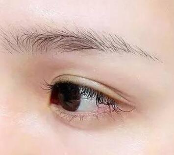宁波雍禾做眉毛种植效果自然吗 多久能长出来