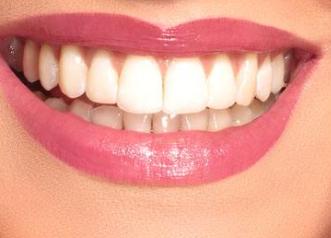 北京口腔医院医疗整形科好吗 烤瓷牙可以解决哪些牙齿缺陷