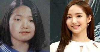 韩国艺人哪几位整容了 朴敏英整容换头计