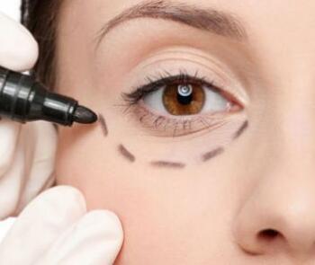 温州克拉美整形医院去眼袋一般价位 吸脂去眼袋效果