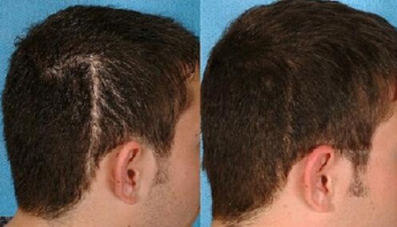 无锡虹桥医院植发整形科疤痕头发种植效果好吗