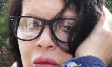 美国女子Manoush Vasquez整容 脸部僵硬无比